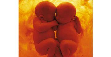 Внутриутробное развитие двойни в фотографиях