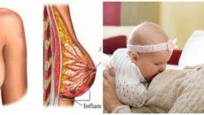 Что делать при болезненности и трещинах сосков