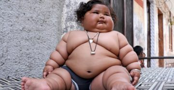 Слишком толстый ребенок