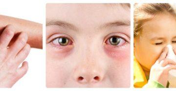 Поллиноз – заболевание опасное